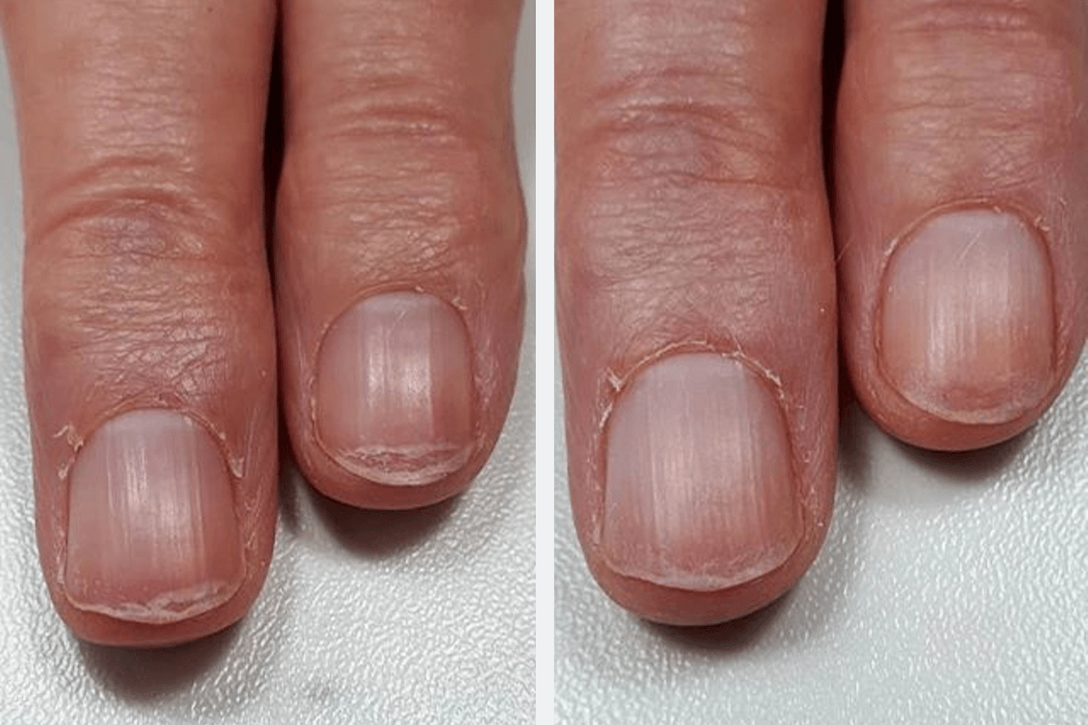 IBX - Manicure Results