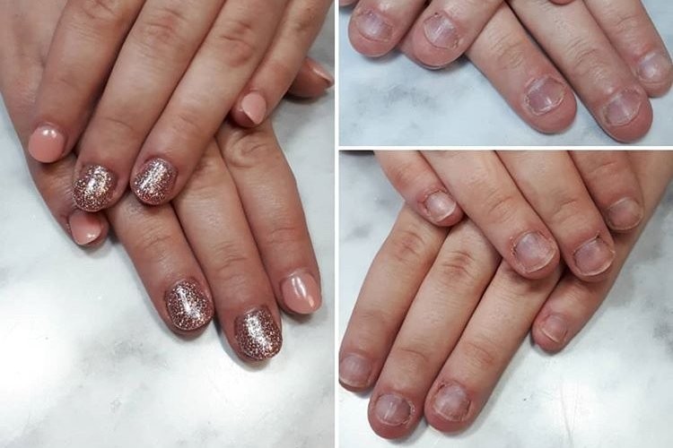 Quit biting nails - check our packages