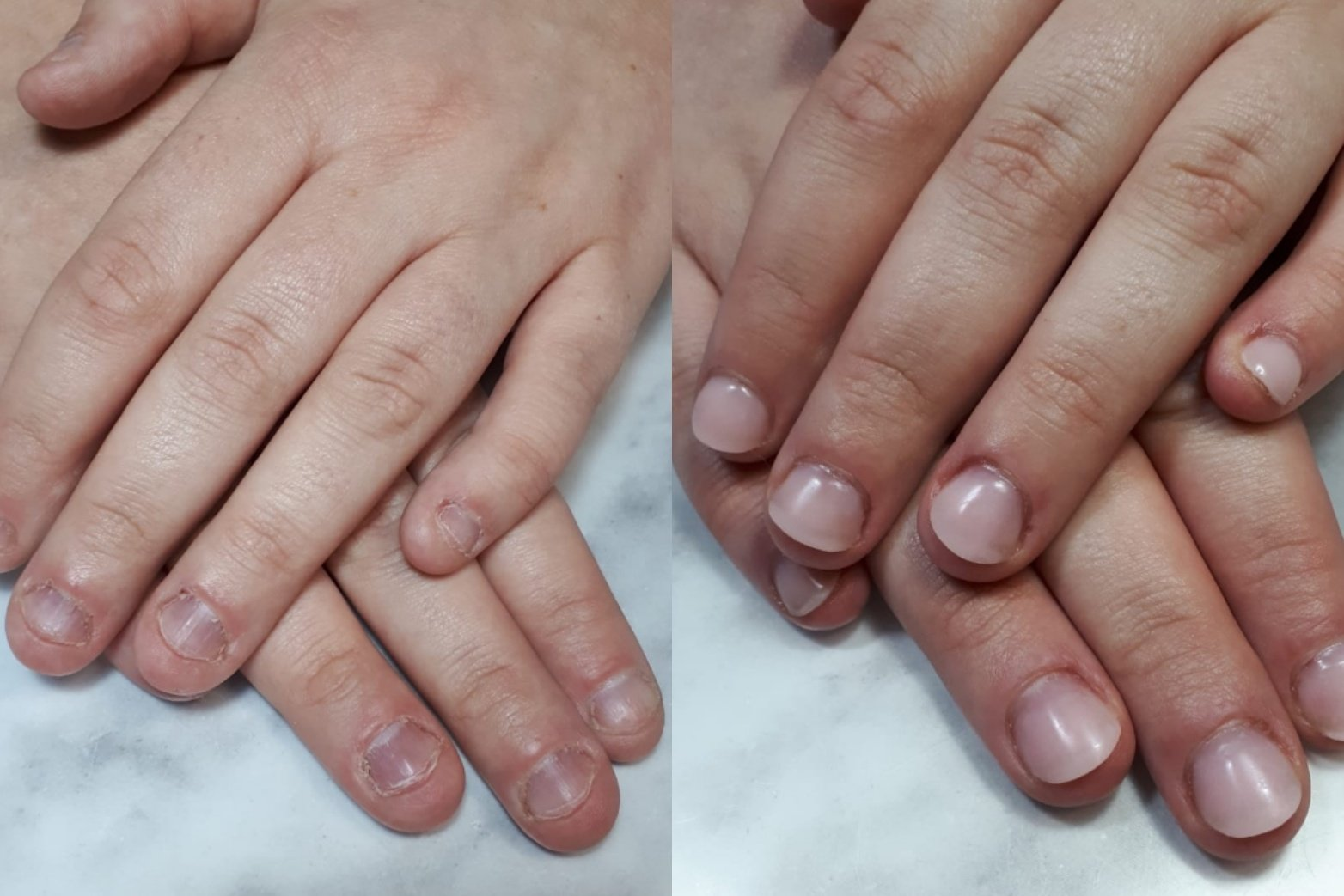 Quit biting nails package - better