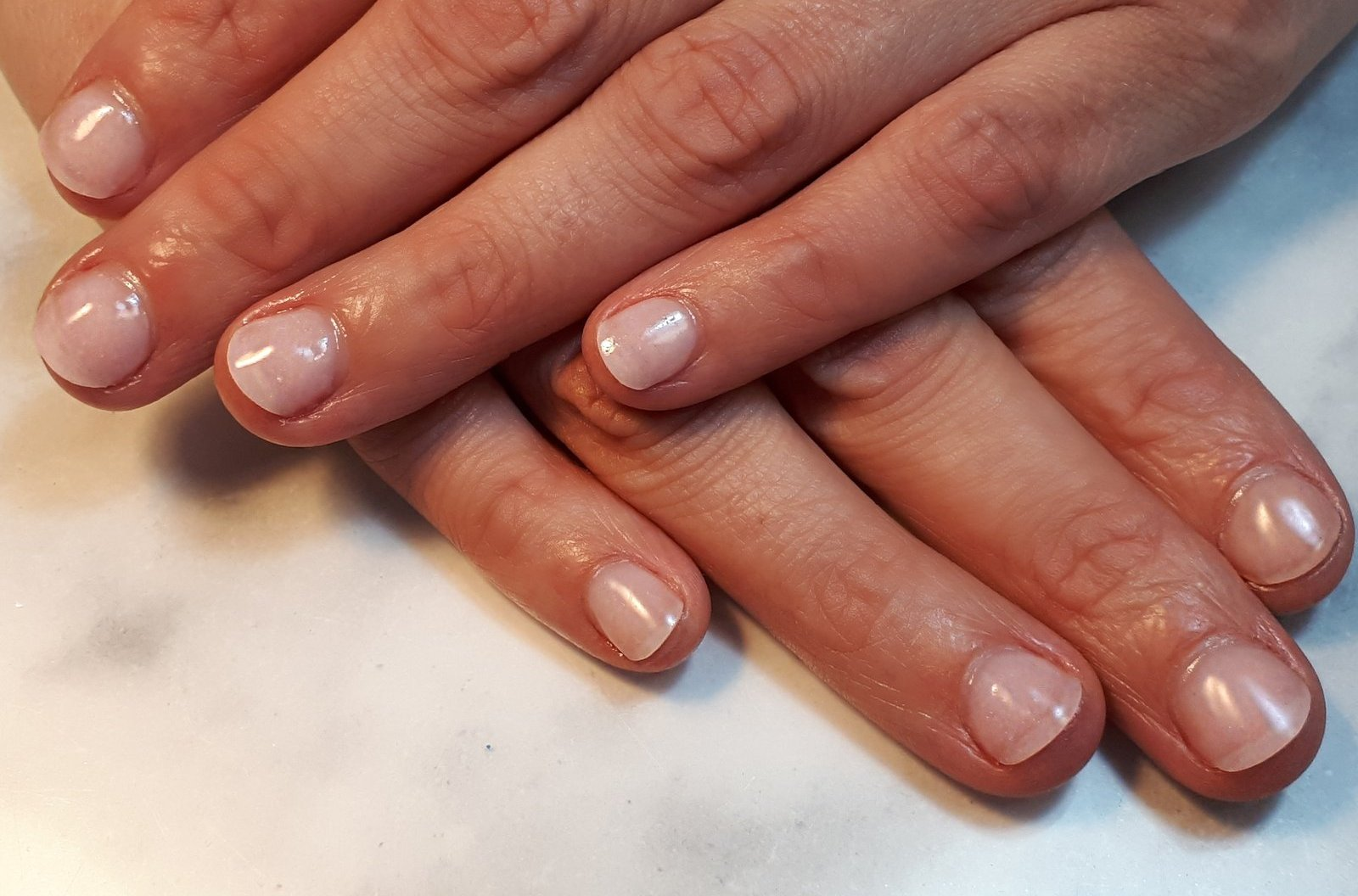 Quit nail biting - check our packages